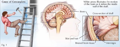 Mechanism of a Concussion