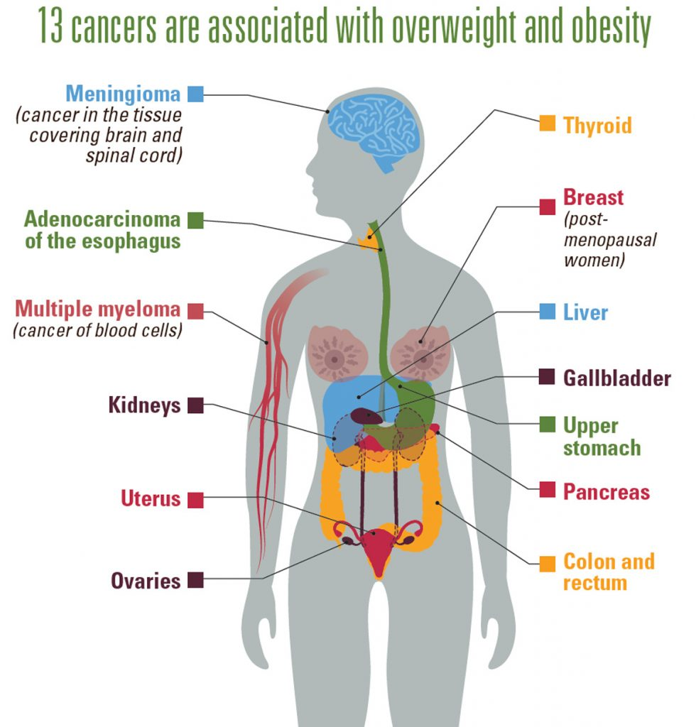 The various Obesity-Related Cancers